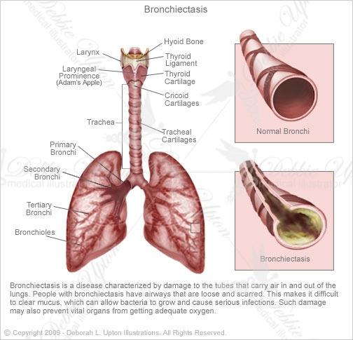 bronchiectasis-504x485