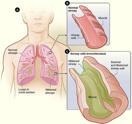 Bronchiectasis_NHLBI