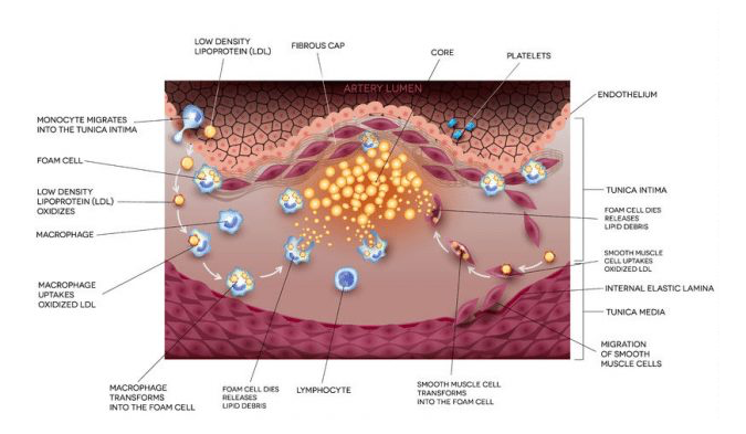 Diabetes And Statins Type Ii